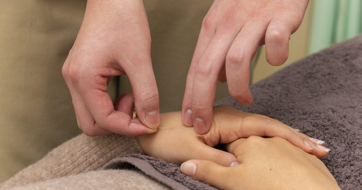 伝統鍼灸治療